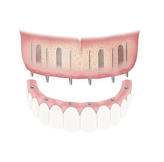 BEGO Semados® provisional implants